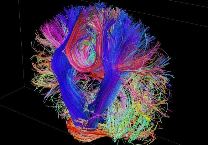 brain nice